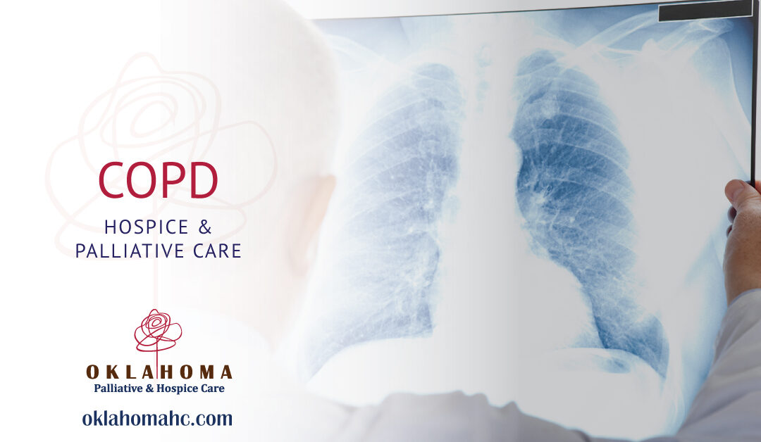 Hospice and Palliative Care for COPD
